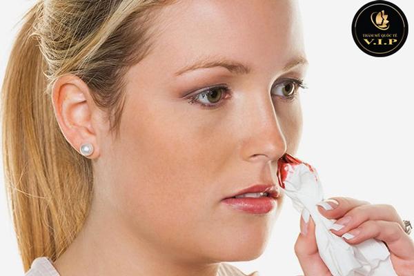 nâng mũi bao lâu hết chảy máu